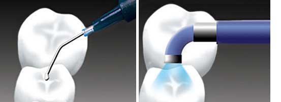 مراحل انجام فیشور سیلنت دندان