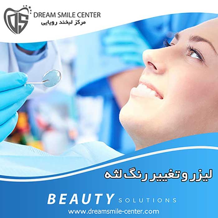 لیزر دندانپزشکی اصفهان