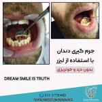 لیزر تراپی دندان