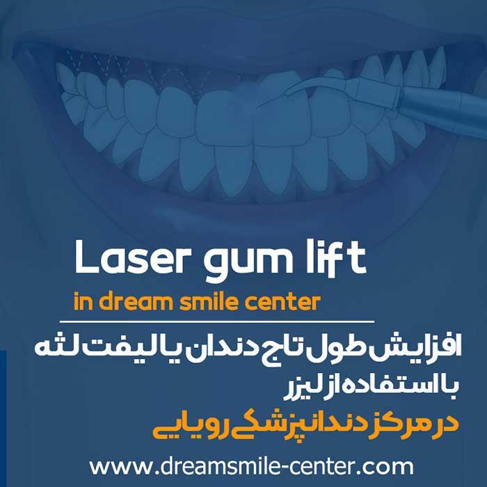 لیزر تراپی دندان در اصفهان