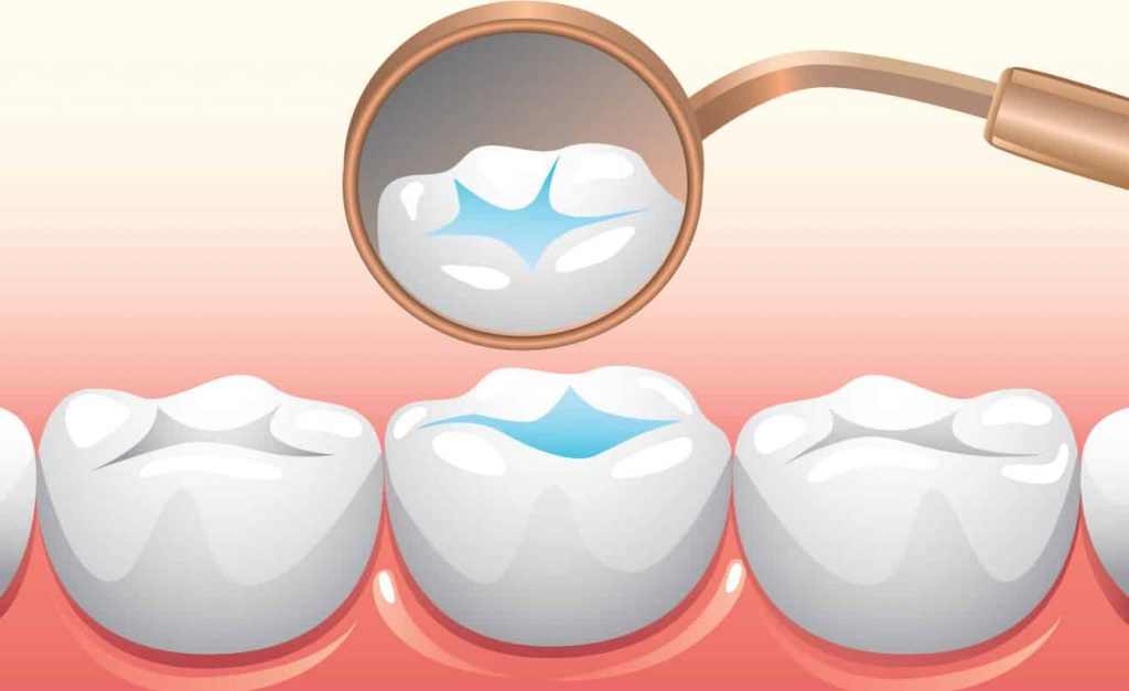 فیشور سیلانت دندان