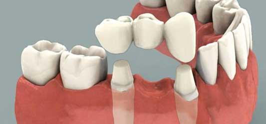 پل ثابت برای کاشت دندان
