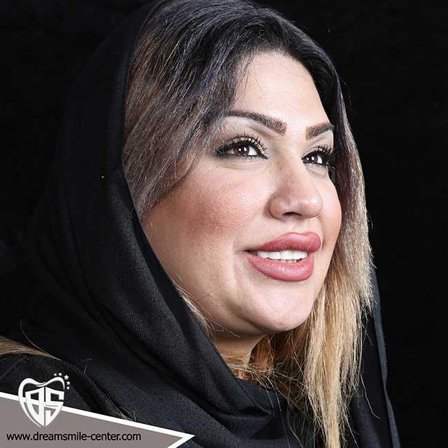 لبخند زیبا اصفهان