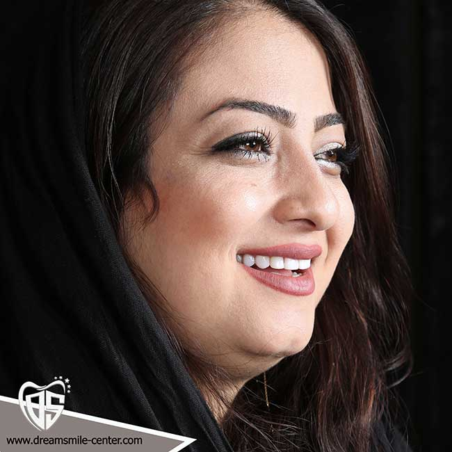 لبخند هالیوودی اصفهان