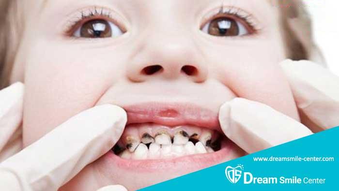 علت تغییر رنگ دندان کودکان