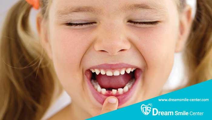 علت دیر افتادن دندان شیری