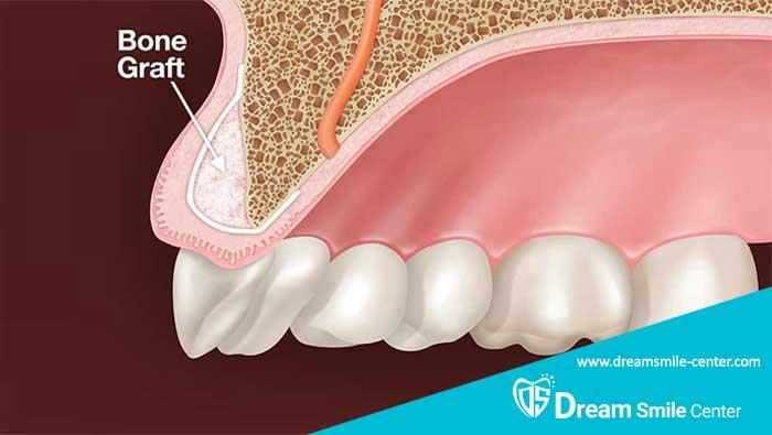 پیوند دندان