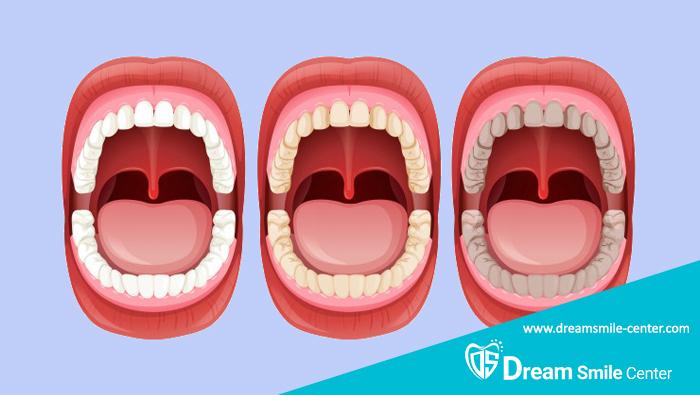دندان های آسیاب بزرگ
