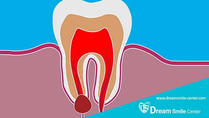 درمان کیست دندان کودکان