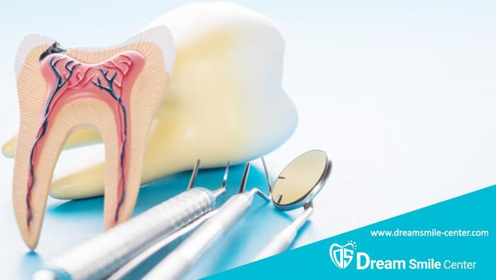 عصب کشی مجدد دندان