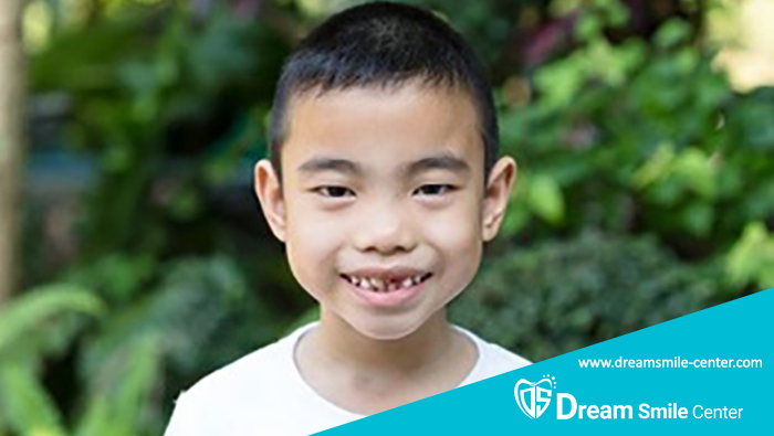 لب پر شدن دندان شیری کودک