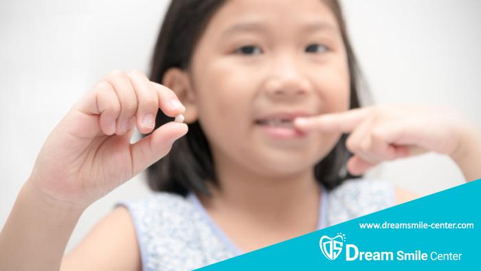 ترتیب افتادن و درآمدن دندان های شیری