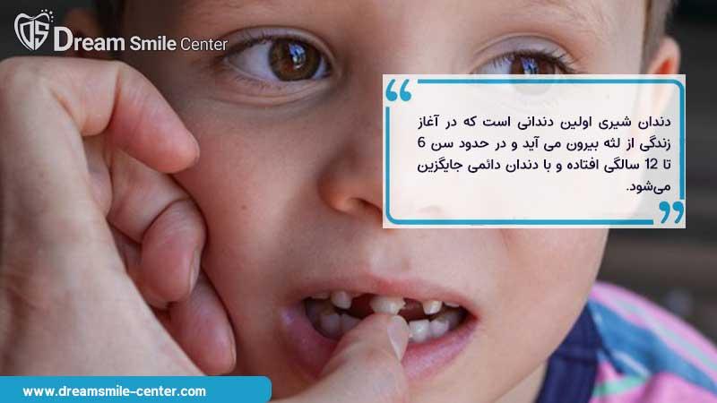 تفاوت دندان شیری و دائمی