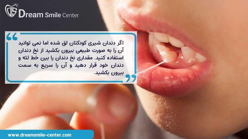 استفاده از نخ دندان برای کشیدن دندان شیری لق