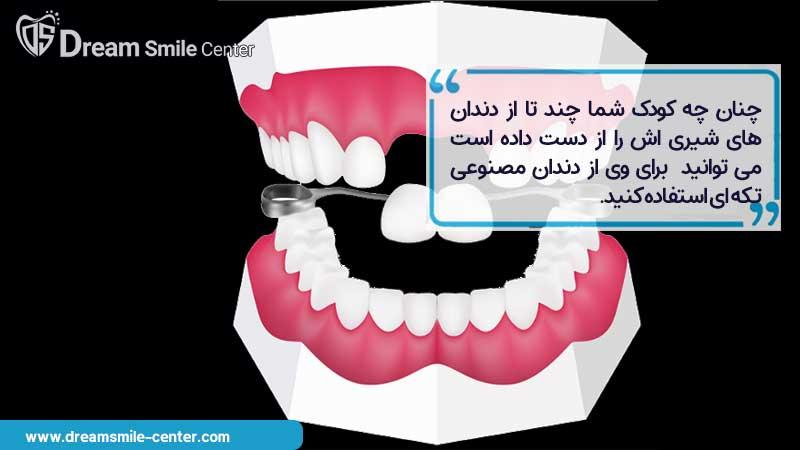 جای گذاری چند دندان شیری با دندان مصنوعی