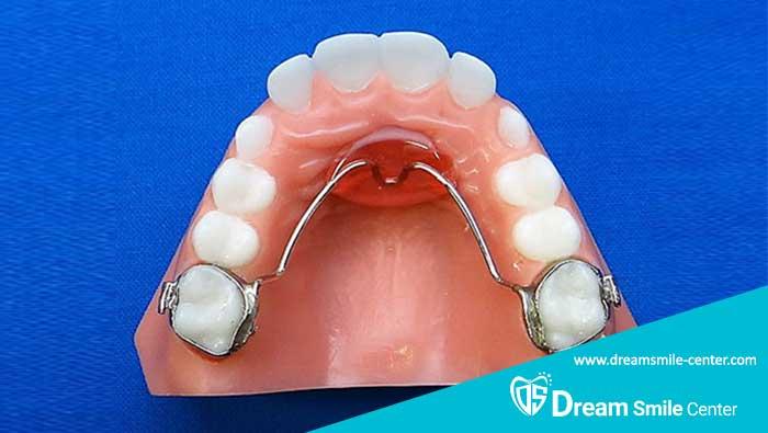 جایگزین کردن دندان شیری با فضا نگهدارنده