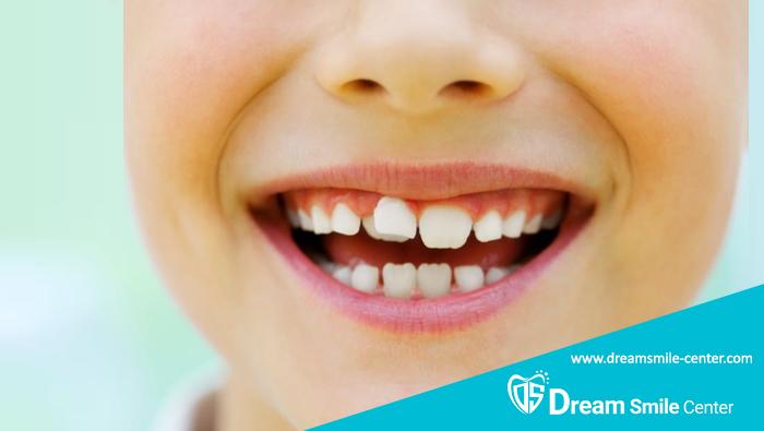 رشد دندان شیری اضافه و درمان آن